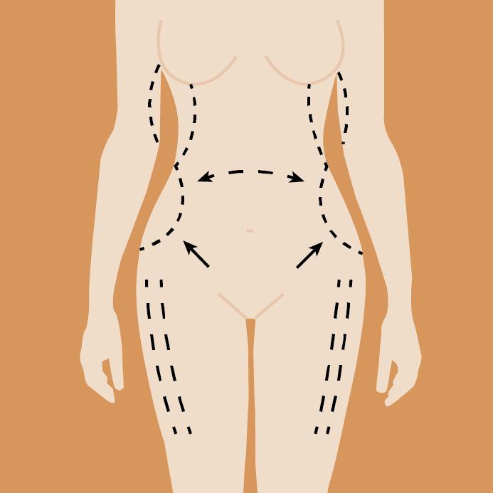 illustration surgery